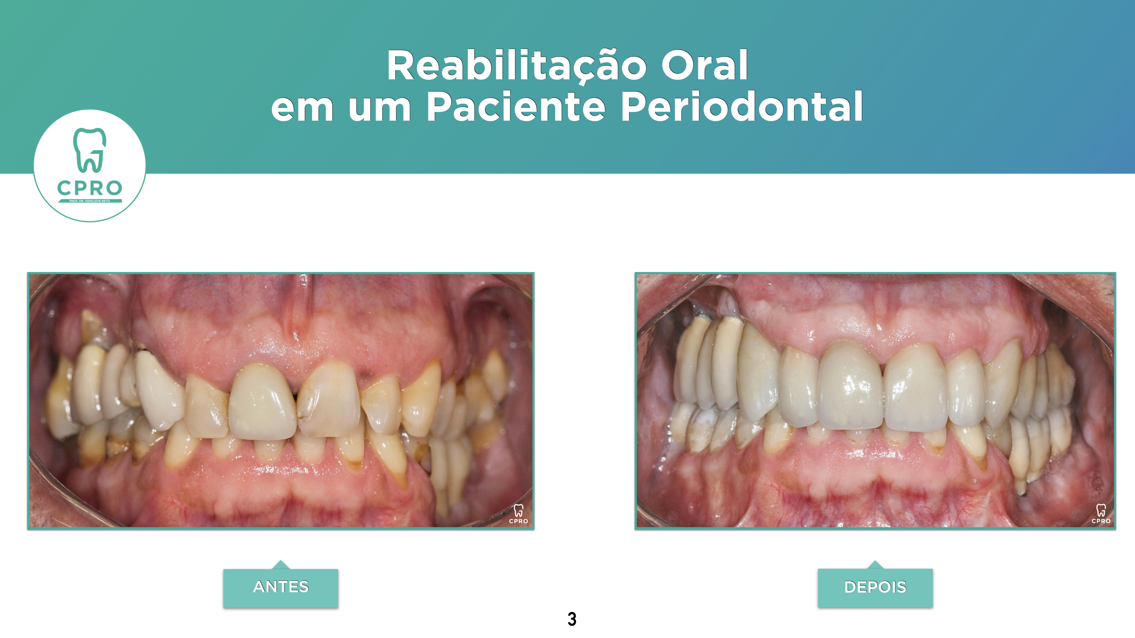 Periodontia | Prótese Fixa