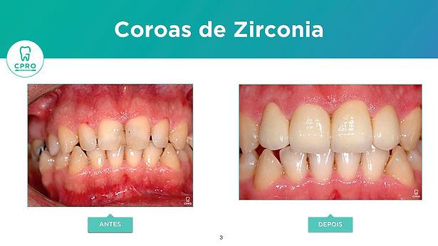 Coroas de Zirconia.jpeg