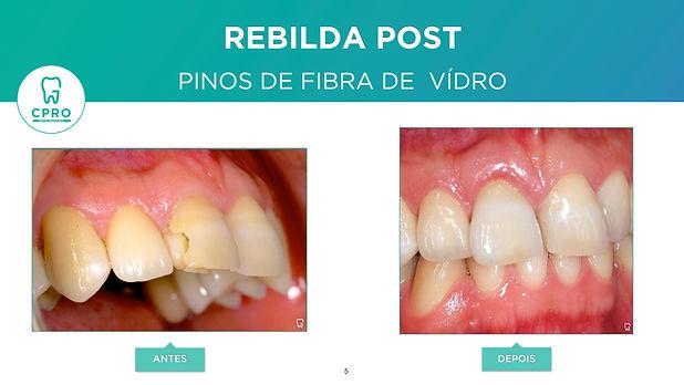 Reconstrução de Dente Anterior.jpeg