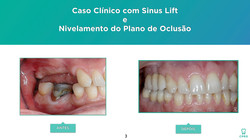 Oclusão | Implantes | Prótese Fixa