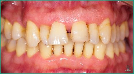 Prótese Dentária - Clínica CPRO