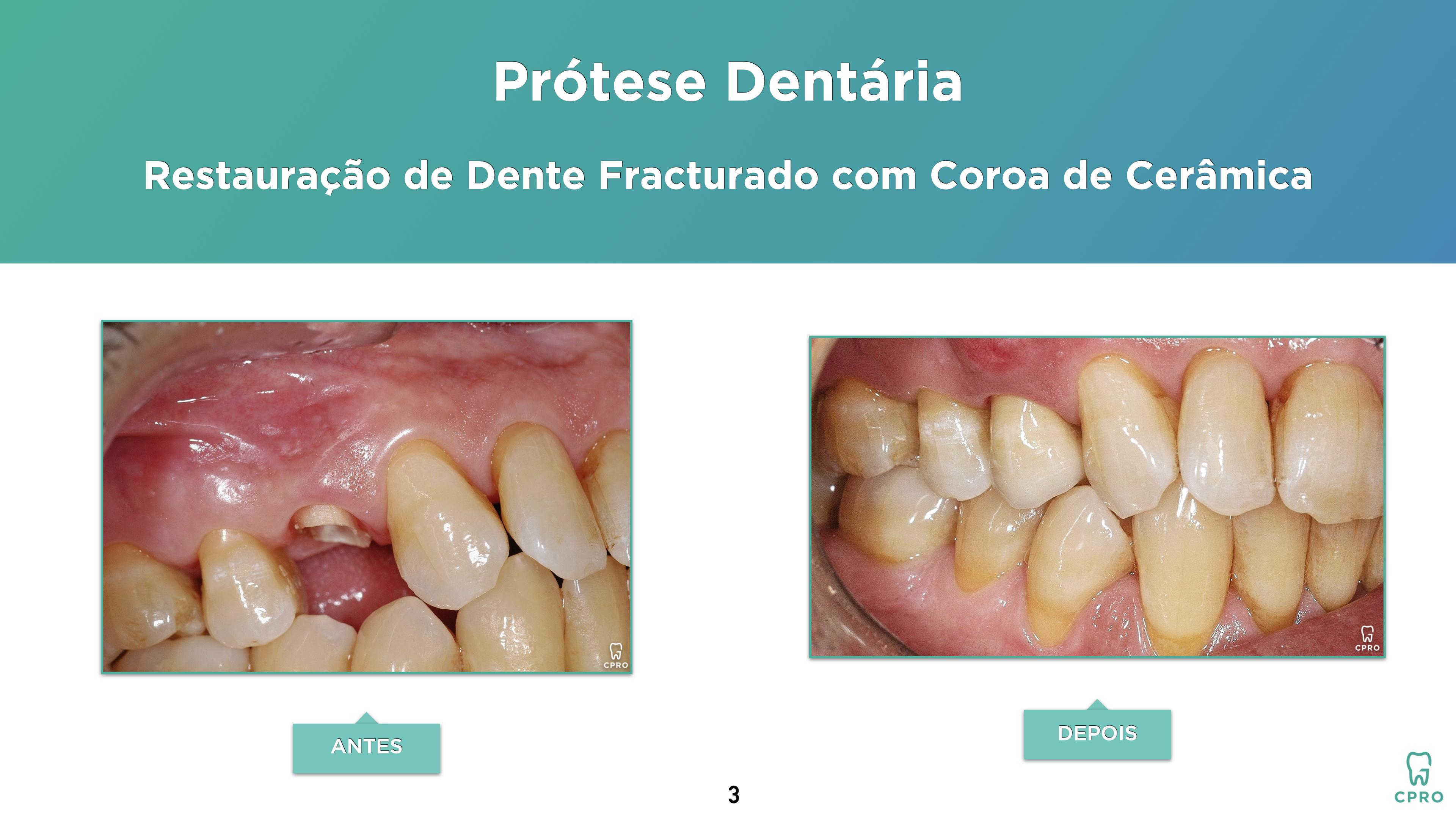 Prótese Dentária | Estética