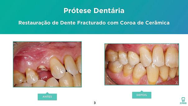 Caso Clínico de Prótese Dentária (Restau