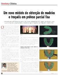 Artigo na RevistaDentistry - Um novo método de obtenção de modelos e troquéis em prótese parcial fixa