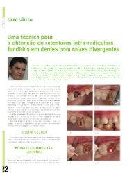 Artigo na RevistaSaúde Oral - Retentores intra-radiculars fundidos em dentes com raízes divergentes