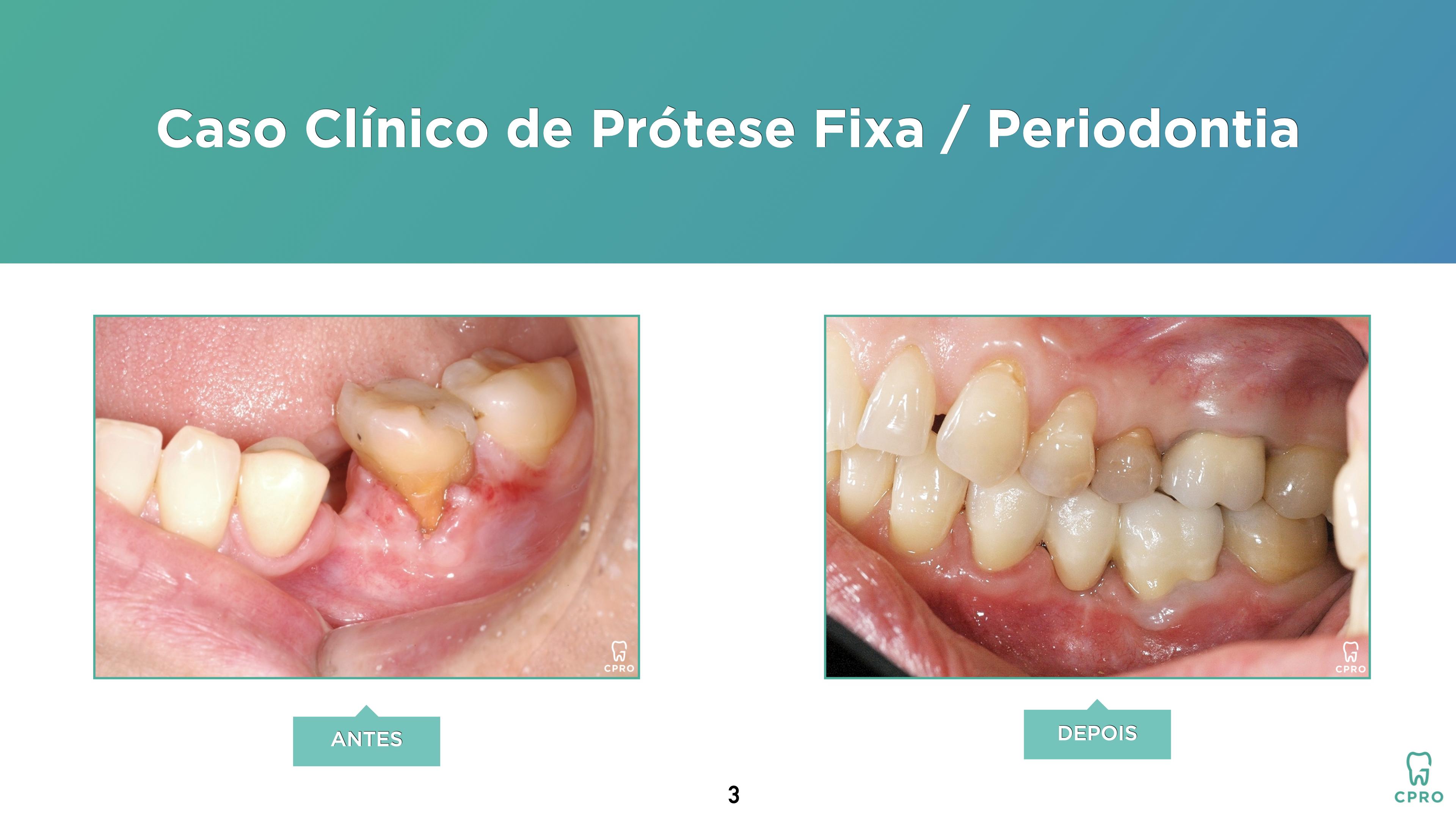 Prótese Fixa | Periodontia