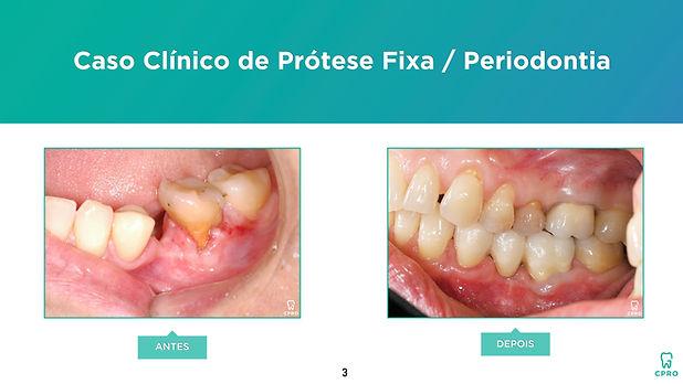 Caso Clínico de Prótese Fixa Periodontia
