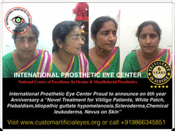 treatment for White patches