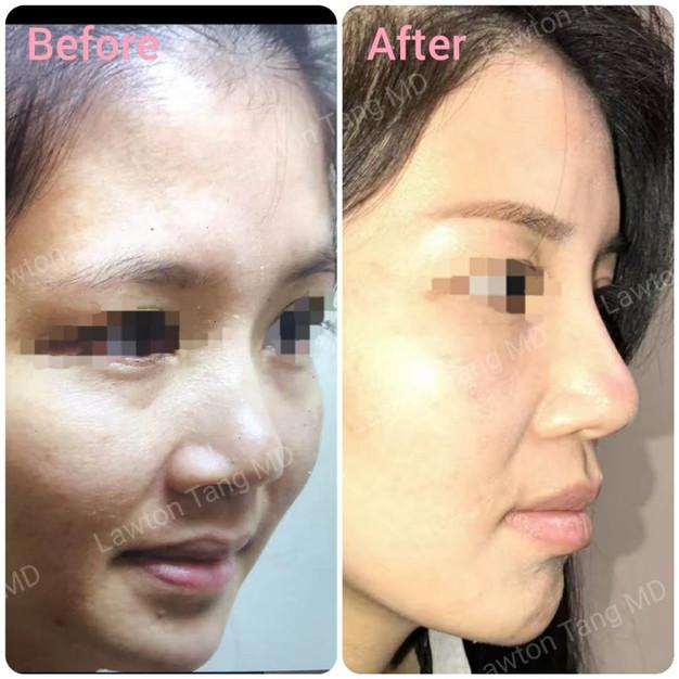 Lawton Tang MD  NOSE RHINOPLASTY surgery 隆鼻 醫美  整形