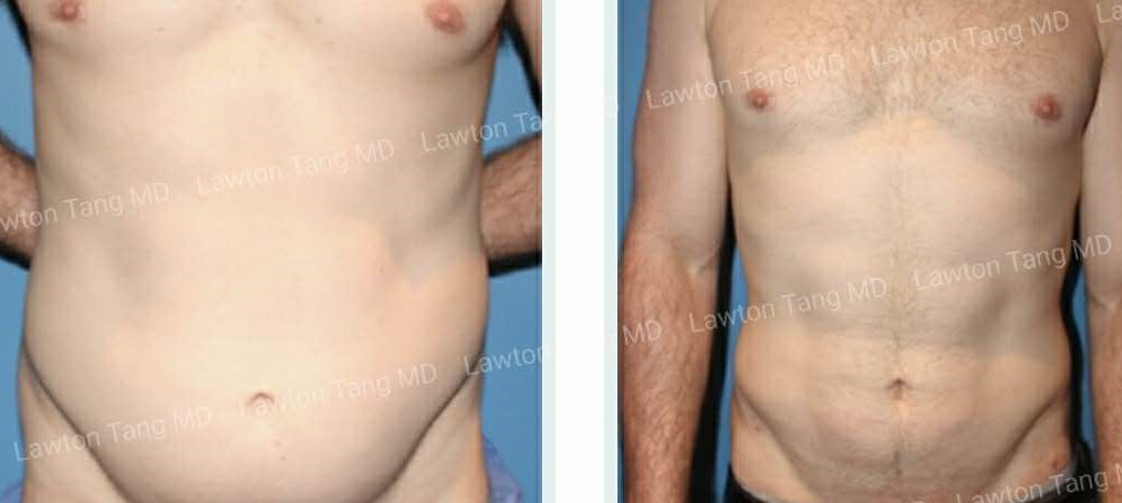 Lawton Tang MD liposuction tummy tuck plastic sugery 醫美 抽脂 吸脂 腹部拉皮
