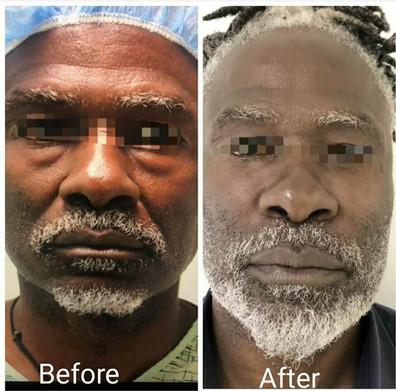 Lawton Tang MD Blepharoplasty eyelid surgery