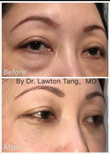 Lawton Tang Blepharoplasty eyelid surgery