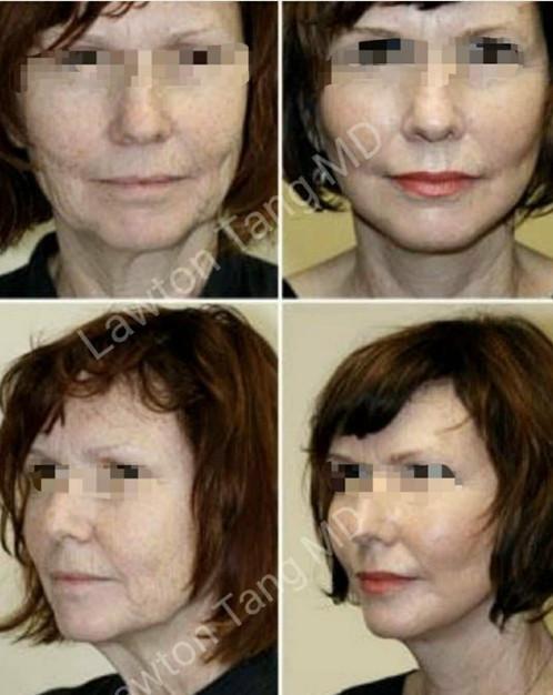 Lawton Tang MD Blepharoplasty eyelid surgery Stem cell 幹細胞回春 醫美 割雙眼皮 眼袋