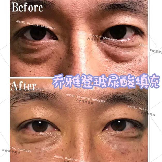 Lawton Tang MD Filler injection botox 玻尿酸 肉毒桿菌 醫美  整形