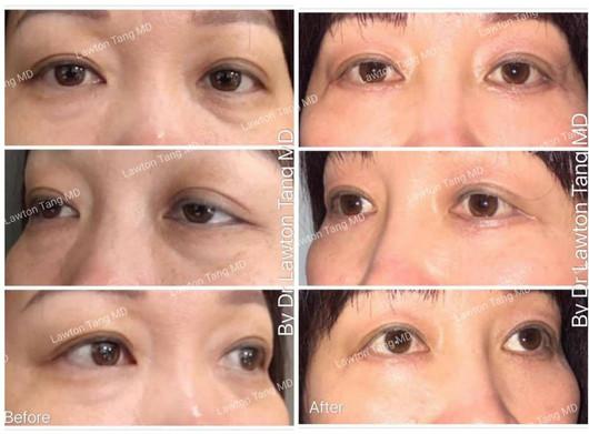Lawton Tangmd Blepharoplasty eyelid surgery