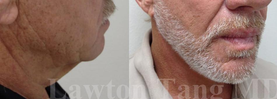 Lawton Tang MD face neck lift surgery 醫美 拉皮