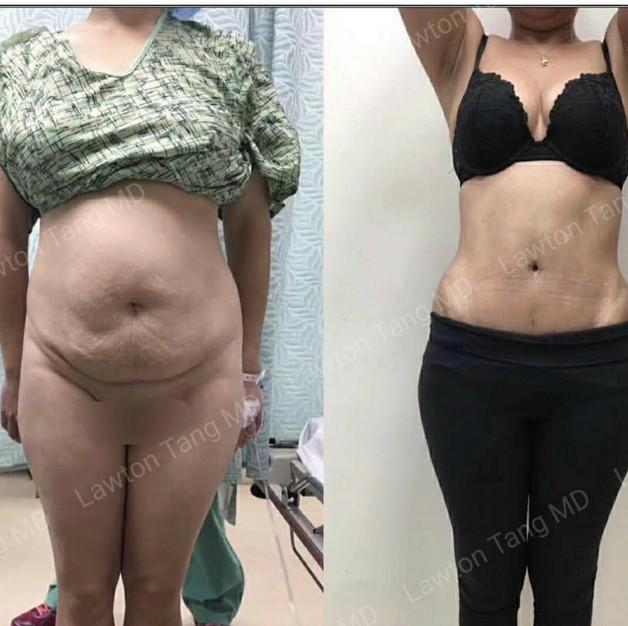 Lawton Tang liposuction tummy tuck plast