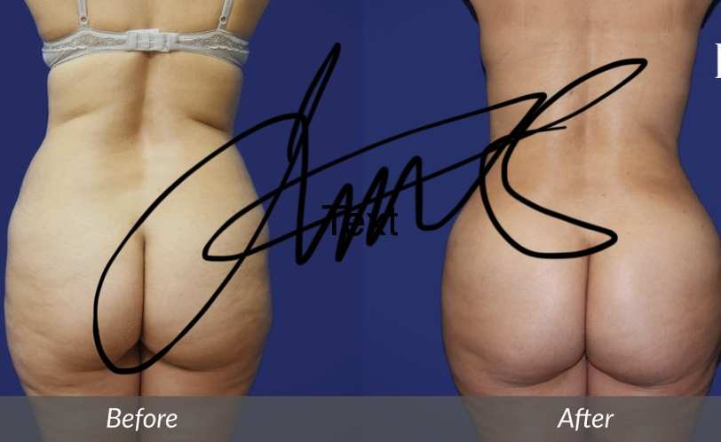 Lawton Tang MD brazillian buttlift plastic surgery 豐臀 醫美  整形