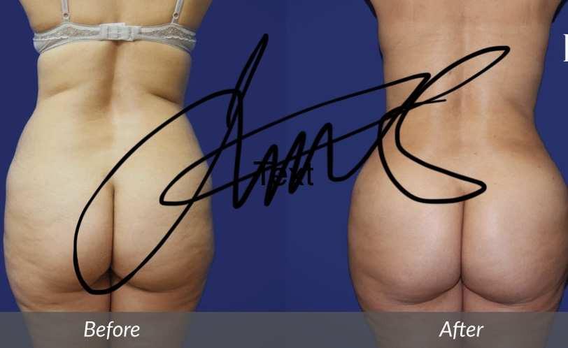 Lawton Tang MD brazillian buttlift plastic surgery 豐臀 醫美  整形