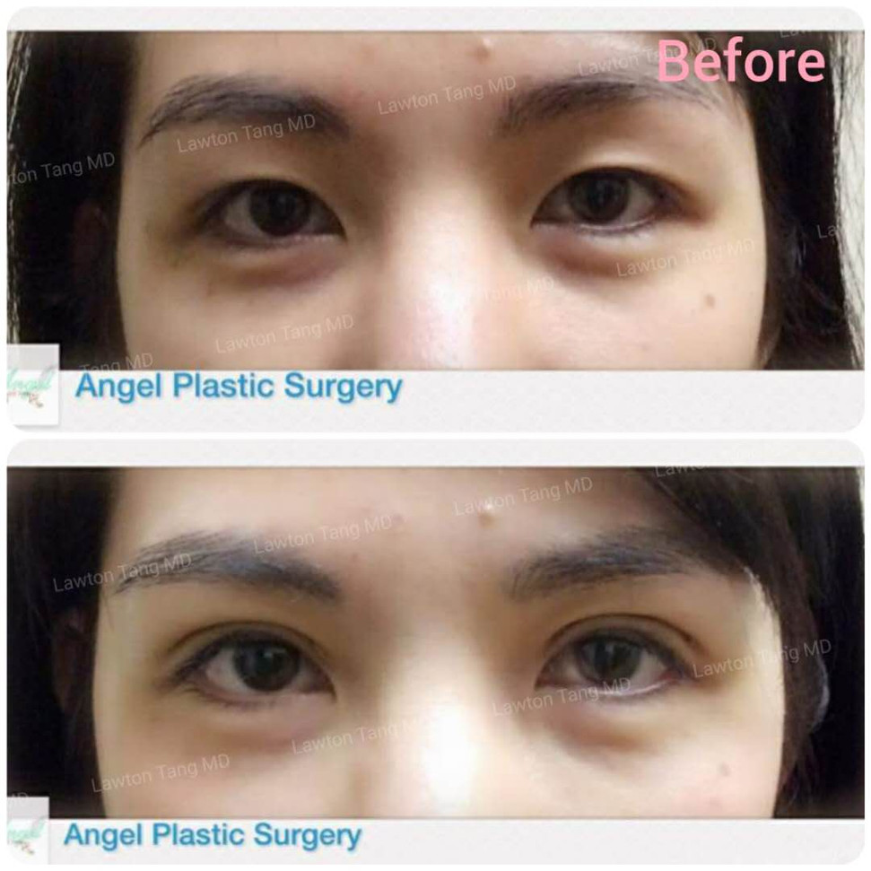 Lawton Tang MD Blepharoplasty eyelid surgery 醫美 割雙眼皮 眼袋