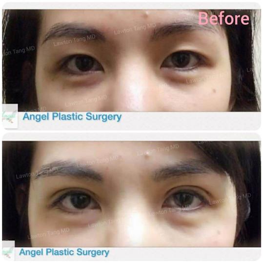 Lawton Tang MD Blepharoplasty eyelid surgery 醫美 割雙眼皮 眼袋
