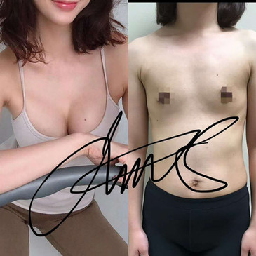 Lawton Tang MD Breast Augmentation surgery Mommy make over 醫美 隆乳  整形