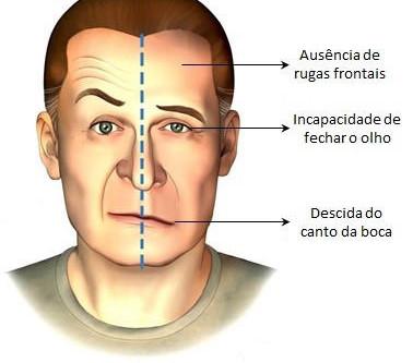 ¿Que es la parálisis Facial?