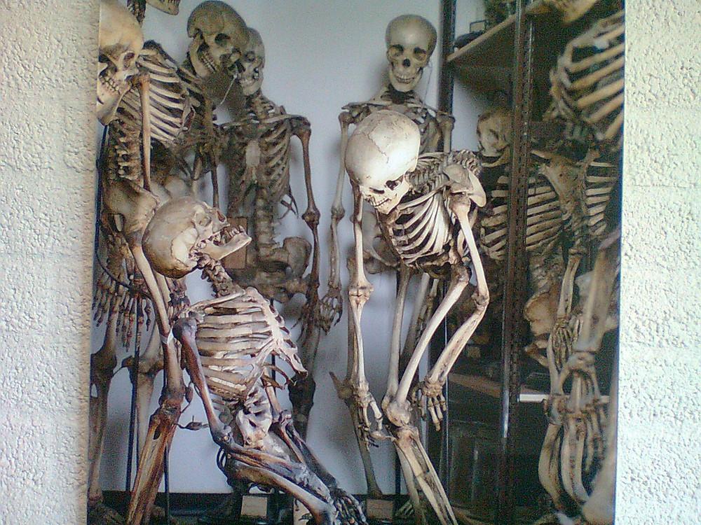 Two skeletons enjoying a joke at the Vrolik Museum