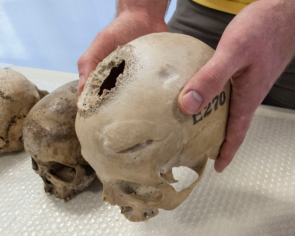skull with healed wound on forehead and hole with spongy bone growth around a tumour site on top of the head. Next to it is a skull showing the eroded nose of a leprosy sufferer