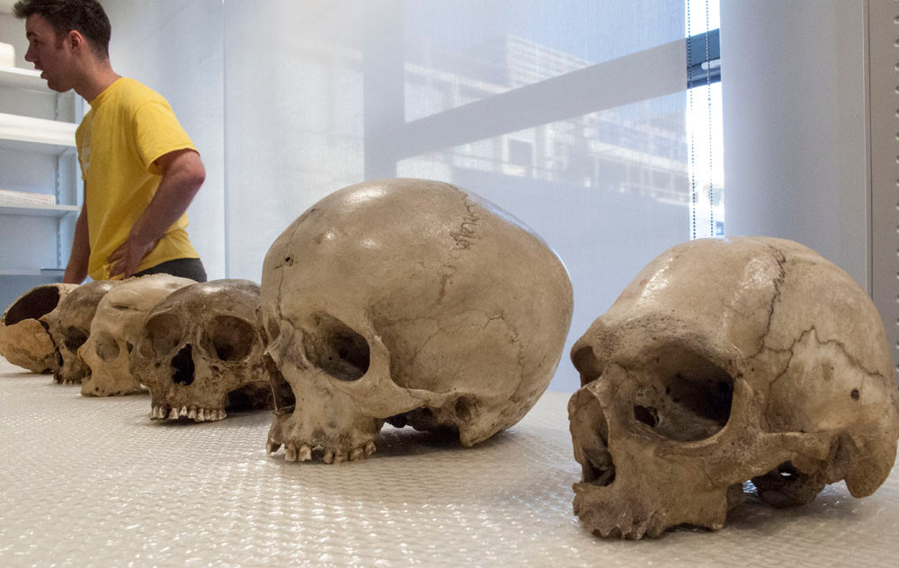 human skulls in various shapes and sizes – from nearest; microcephaly, hydrocephaly, skull deformation by binding, and further behind – traces of illness, gunshot and sword wounds
