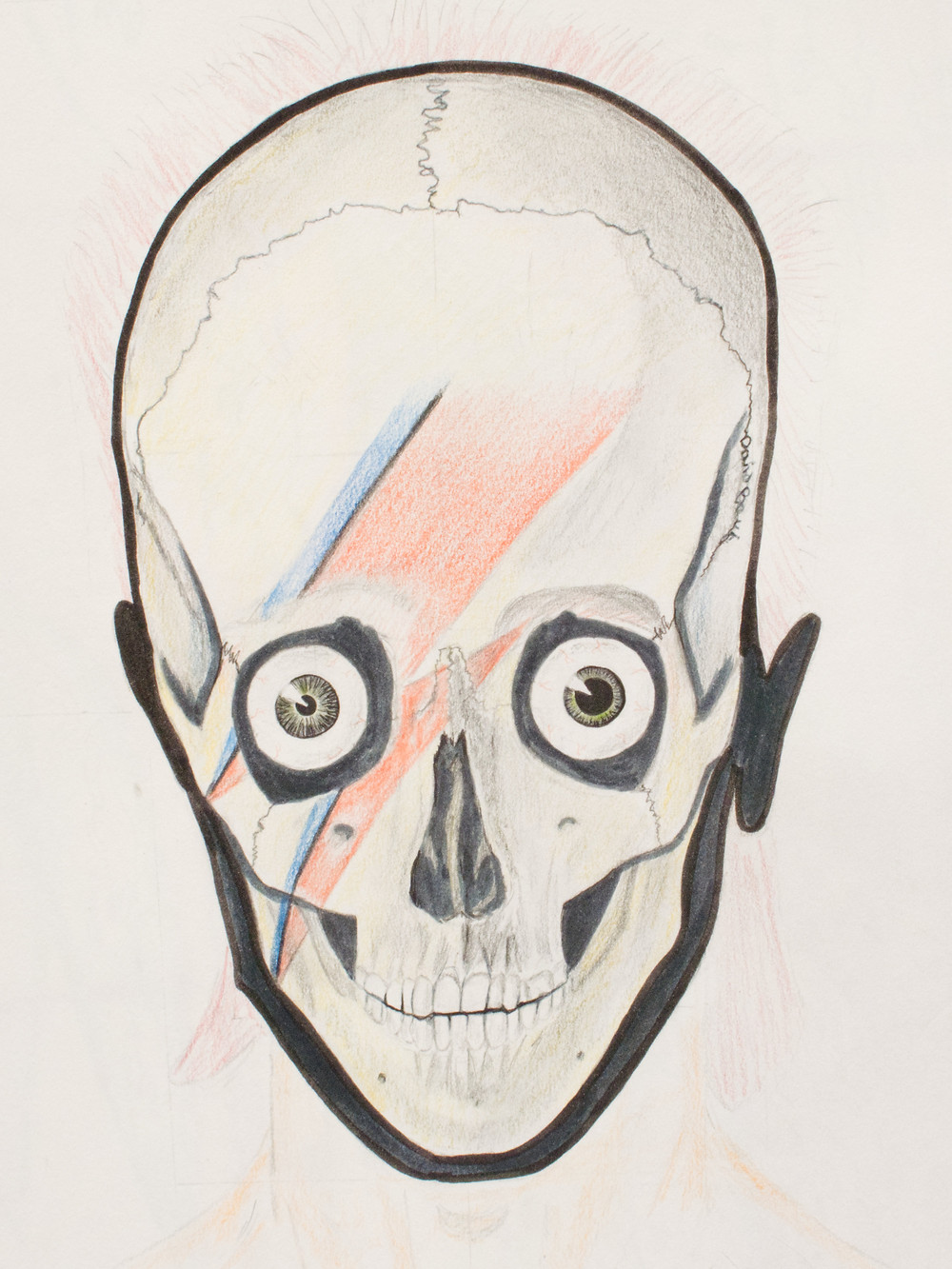 Skull with eyeballs containing different pupil sizes and red and blue thunderbolt across the skull face