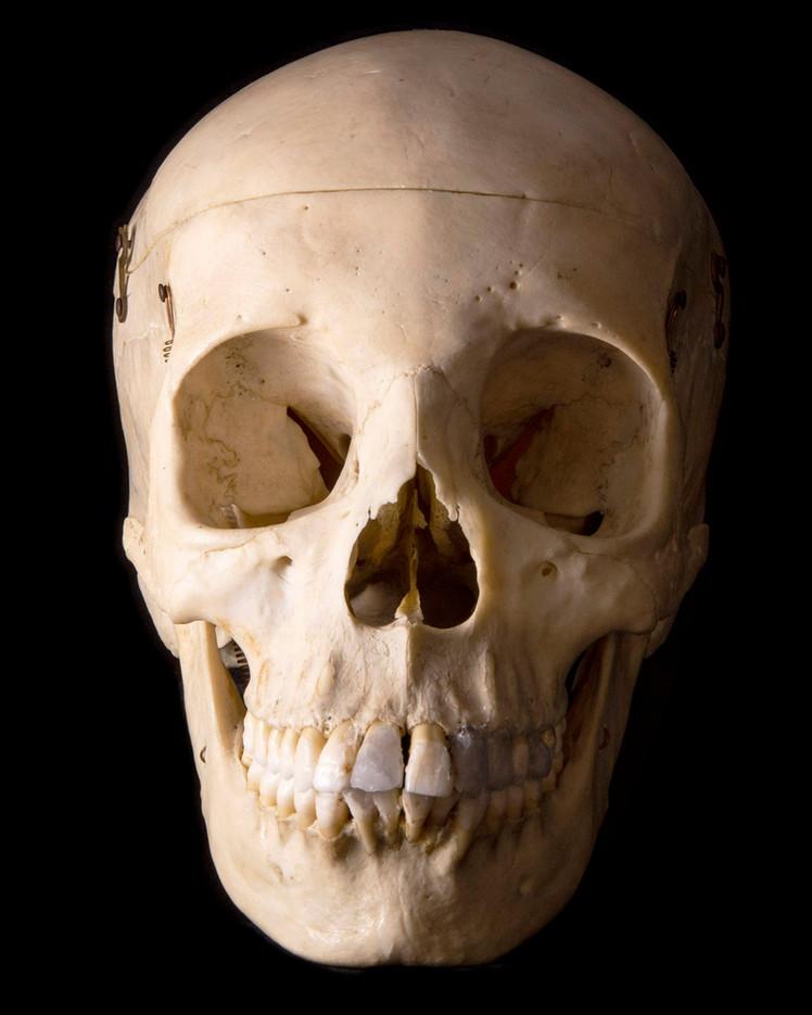 Anatomy skull female BB08 face.jpg