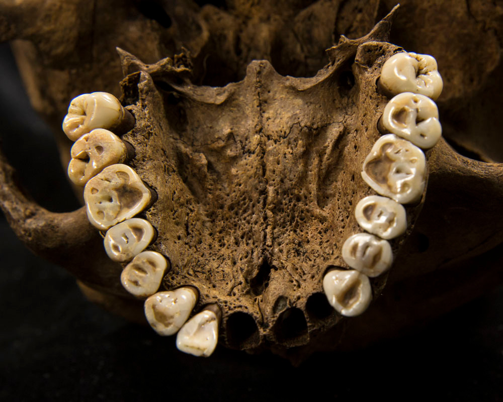 Roman teeth, most molars worn down to expose the dentine