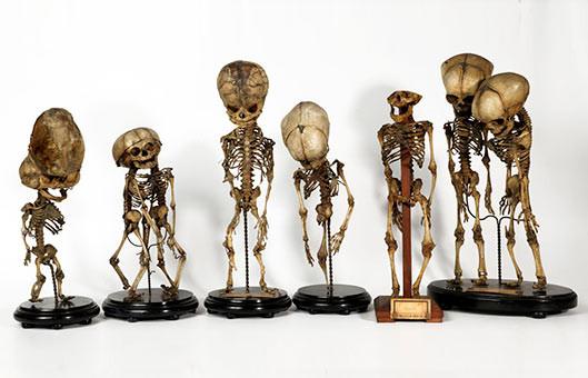 "Fetus ""mutants"" from the Vrolik Museum"