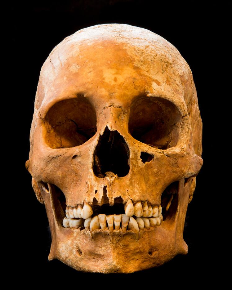 C9-11 Male skull 5082G  front.jpg