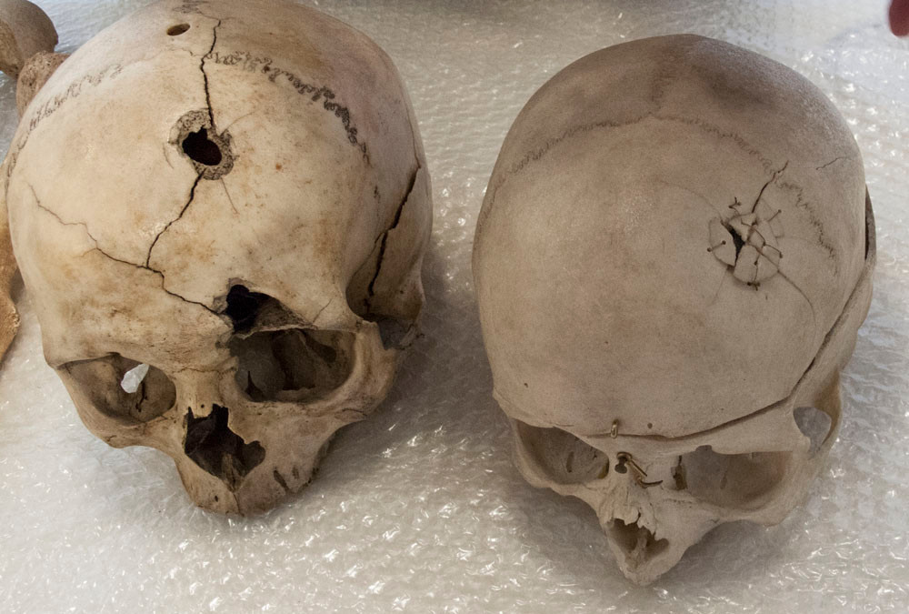 the impact of gun shot wounds. On the left showing the exit wound and cracked skull from a high velocity shot to the back of the head. On the right, a slower bullet, still in place on the inside surface.