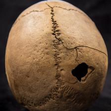 C5-8 Male skull AS2421CD back.jpg