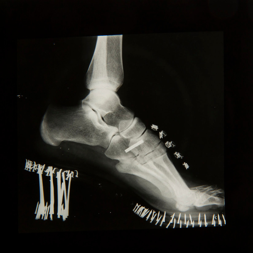 X-ray of foot bones in high heeled shoes also showing shoe construction