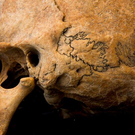 C5-7 Female skull A044EH ossicles.jpg