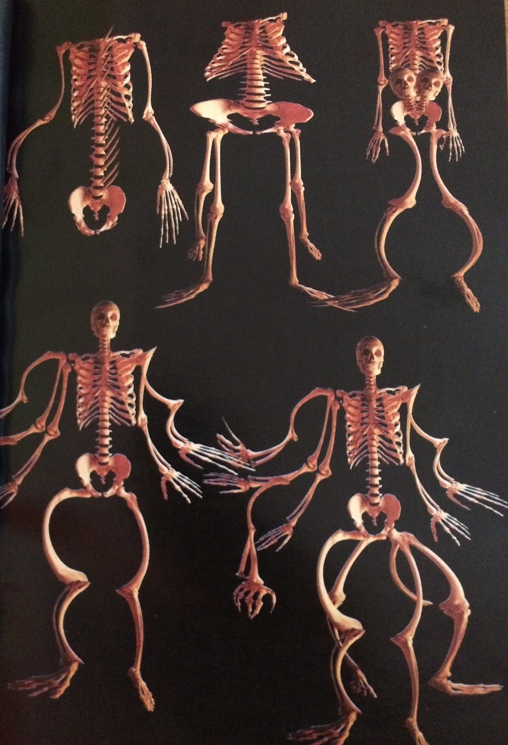 Check this shit out! Human skeletons mutations commonly seen in religious discussions of Darwinism