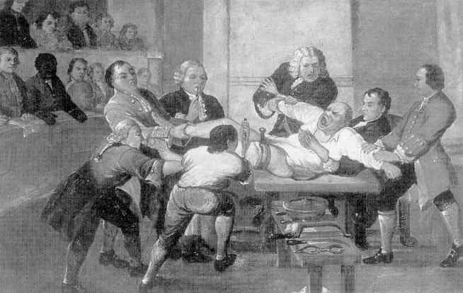 leg amputation in 1775