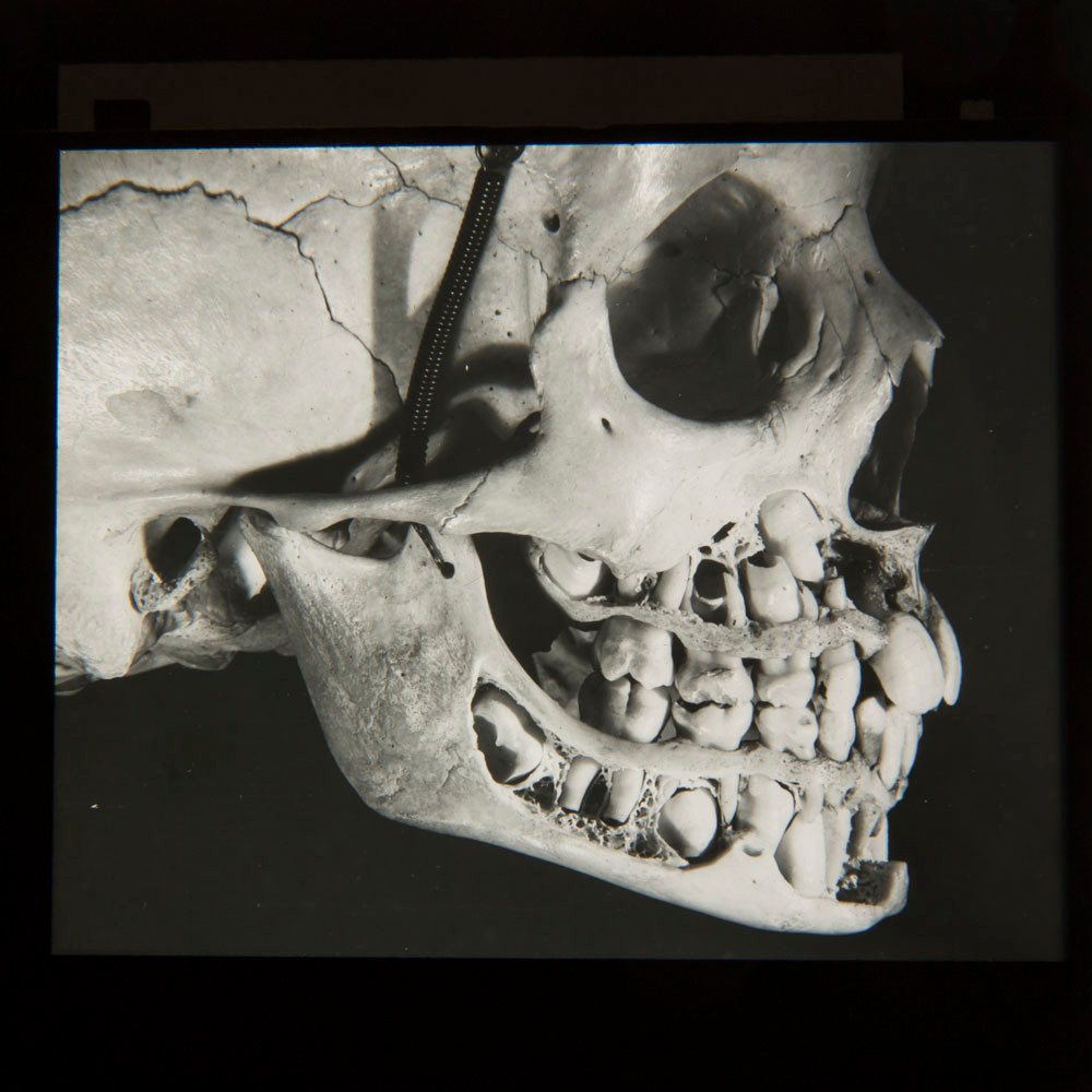 J A Fairfax Fozzard slides - child dentition side view