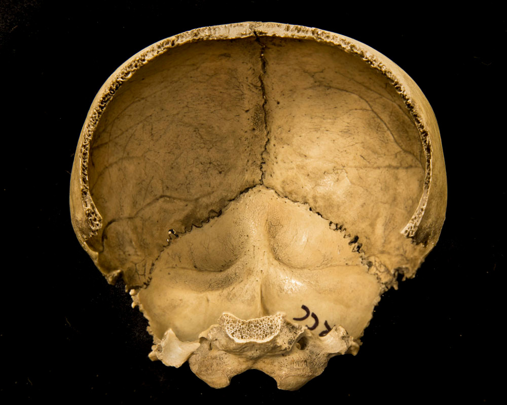 Inside view of the back of the skull