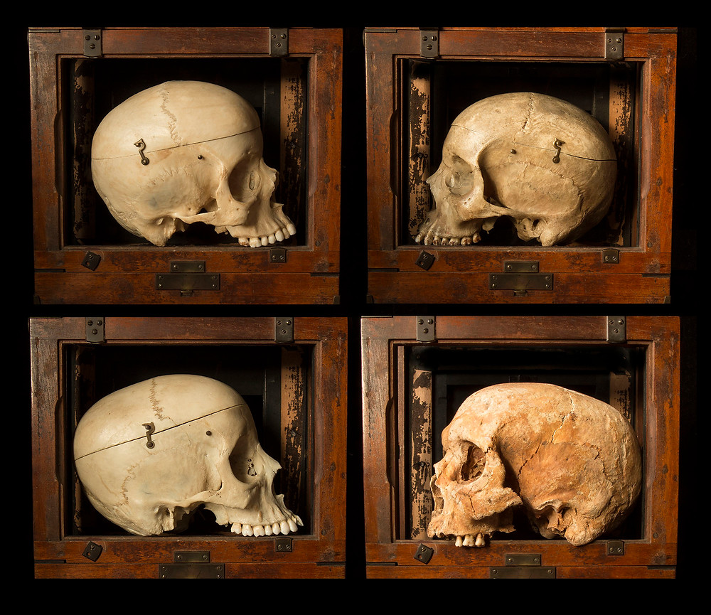 side view of human skulls in a standard comparison box