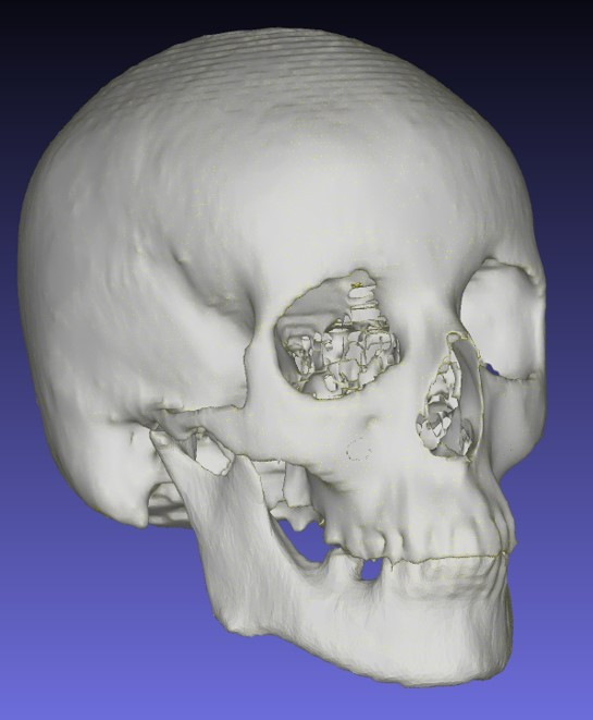 Sue's head and skull from CT scan (hair not included)