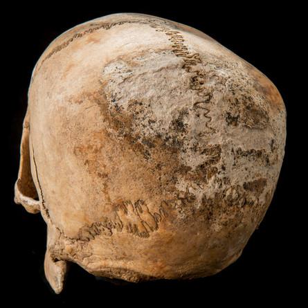 C12-16 Male skull 1822SJ taphonomy.jpg