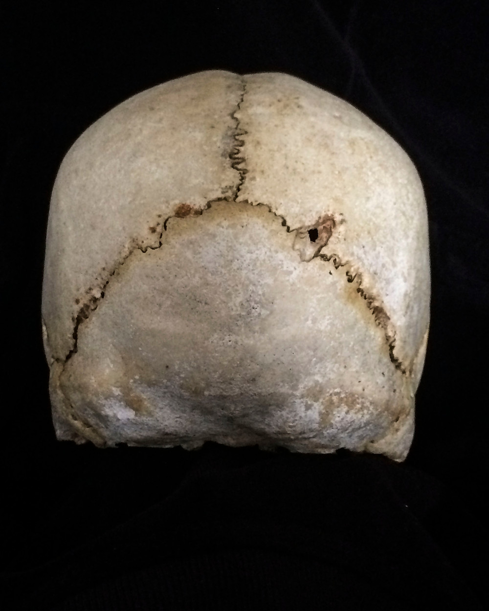 Skull from the back