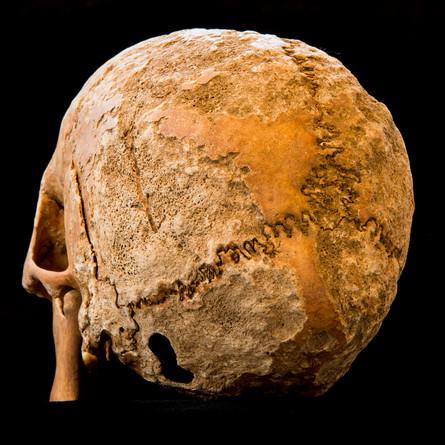 C9-11 Male skull 5082G  taphonomy.jpg
