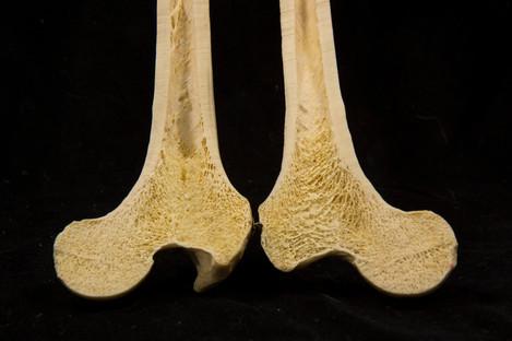 Femur cross section at head