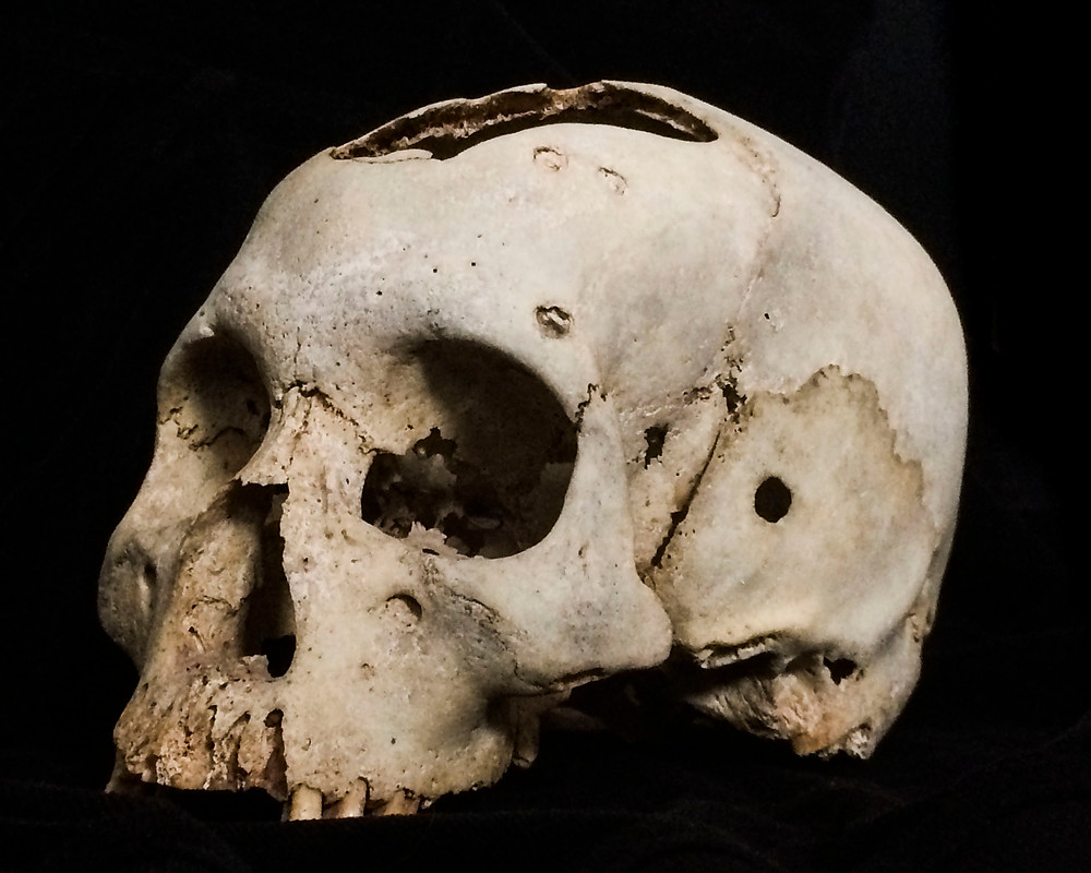 Skull from the side